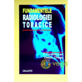 Fundamentele radiologiei toracice - D. Karthikeyan, Deepa Chegu
