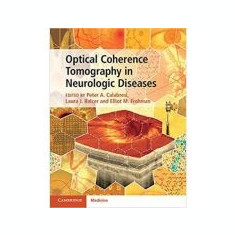Optical Coherence Tomography in Neurologic Diseases - Peter A. Calabresi, Laura J. Balcer, Elliot M. Frohman