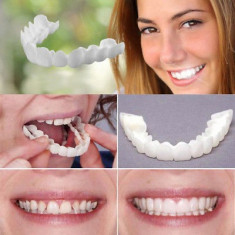 Fatete dentare Snap On Smile solutia ideala pentru un zambet perfect proteza