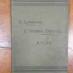 C. Lombroso, L'Homme criminel Atlas, Omul criminal, editia a II-a, Paris 1895