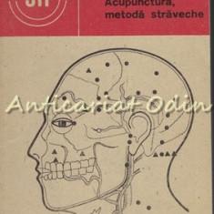 Acupunctura, Metoda Straveche - Teodor Caba, Marius-Theodor Caba