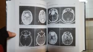 L. Dănăilă și M.-L. Pascu, Lasers in Neurosurgery, Lasere în Neurochirurgie 2001