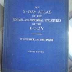 Mc. Kendrick, Un atlas cu raze X a structurilor normale și anormale ale corpului
