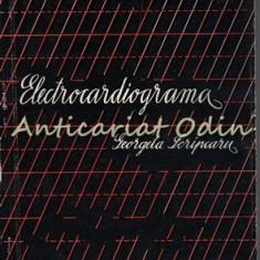 Electrocardiograma - Georgeta Scripcaru