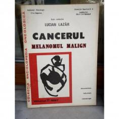 CANCERUL MELANOMUL MALIGN , LUCIAN L AZAR