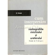 Cum Interpretam Radiografiile Rinichiului Si Uterului - R. Hickel